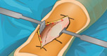 Knie Operatie spel